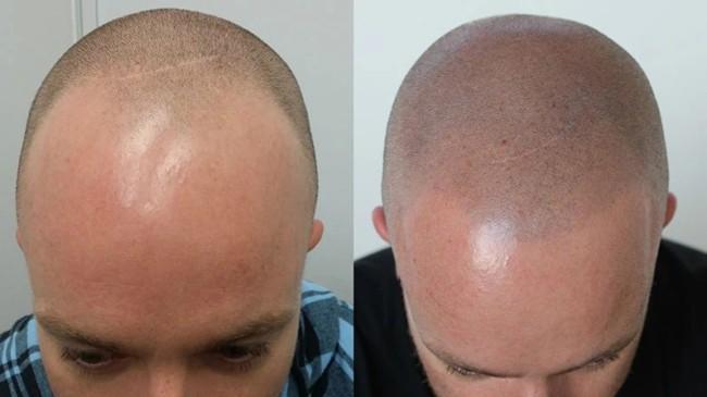 antes e depois de micropigmentacao capilar masculina