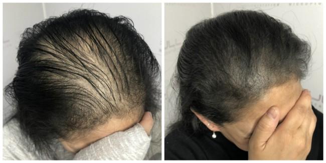 antes e depois de micropigmentacao capilar em mulher