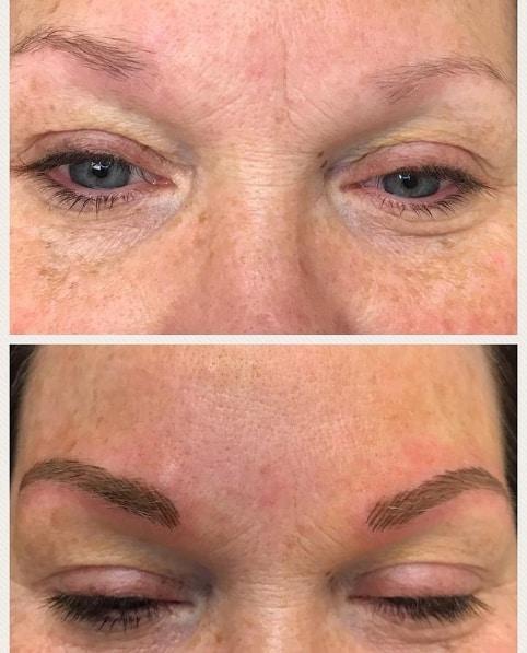 antes e depois de sobrancelha fio a fio em pele mais velha