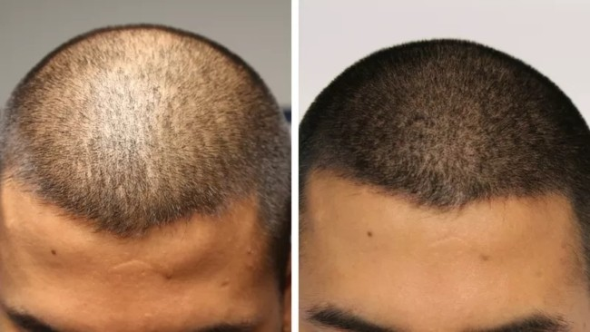 foto de micropigmentacao masculina