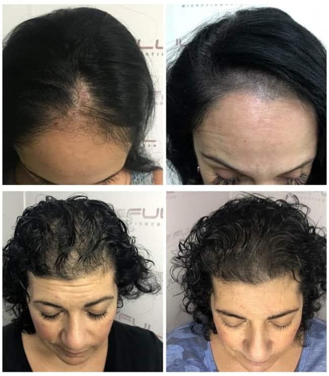 fotos de antes e depois de micropigmentacao capilar feminina