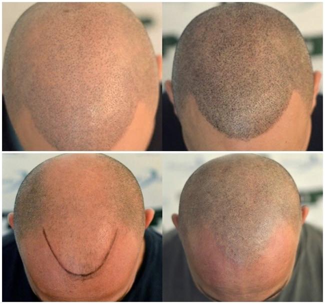 resultados de micropigmentacao capilar masculina