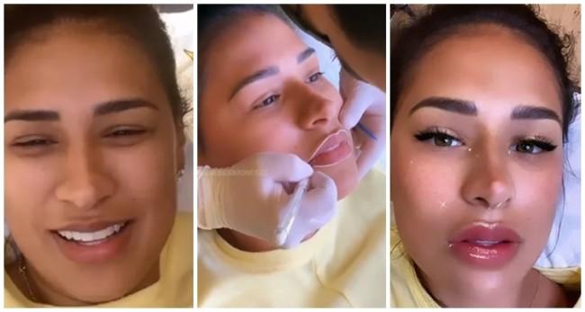 antes e depois de micropigmentacao labial Simone