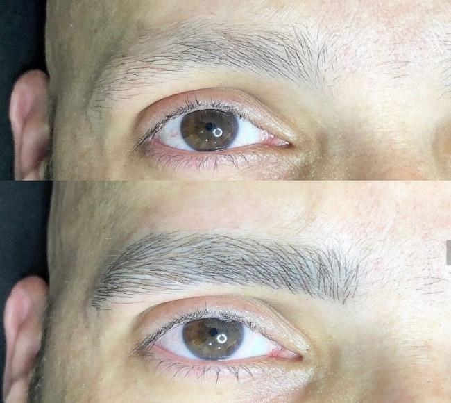 antes e depois de sobrancelha masculina com micropigmentacao