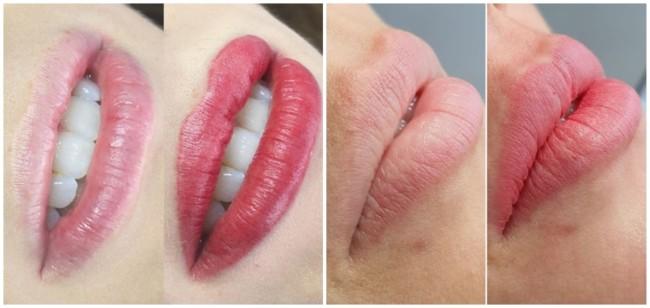 fotos de antes e depois de micropigmentacao labial