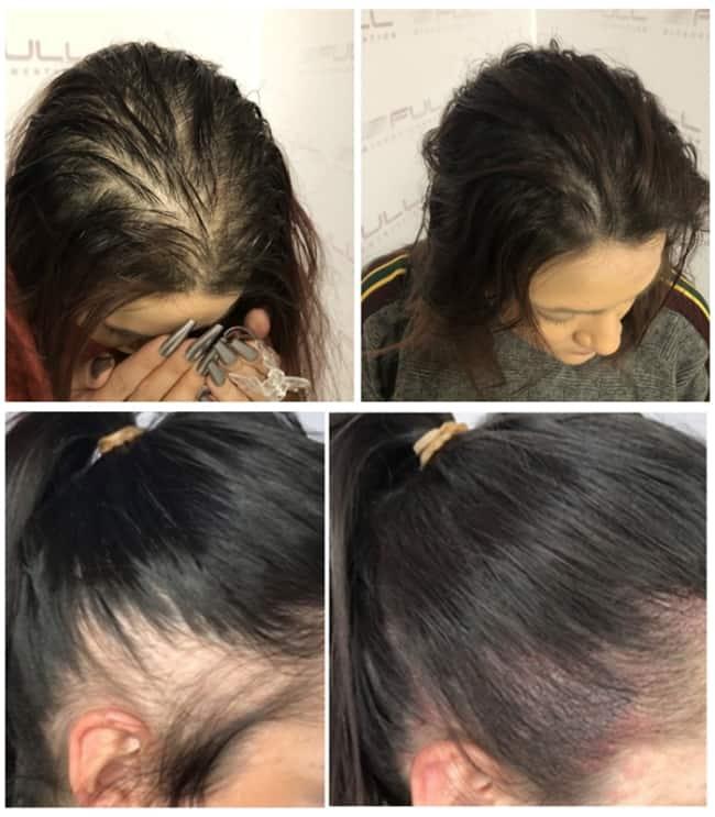 resultado feminino de micropigmentacao capilar