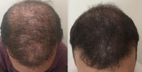 antes e depois de cabelo masculino com micropigmentacao