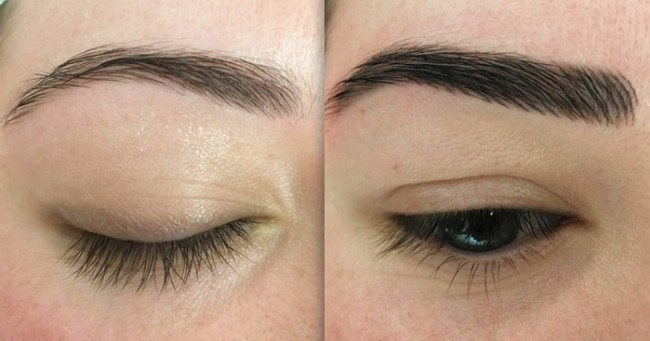 foto de antes e depois de correcao com micropigmentacao