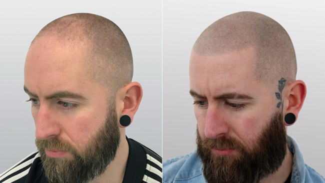 resultado de micropigmentacao capilar em cabelo raspado