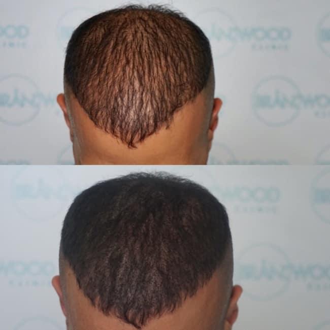 antes e depois de micropigmentacao capilar em cabelo curto de homem