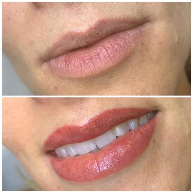 antes e depois de labios com pigmento