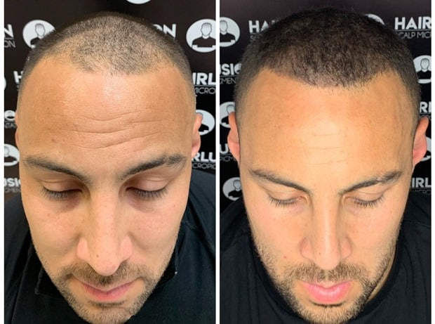 preenchimento com micropigmentacao capilar masculina