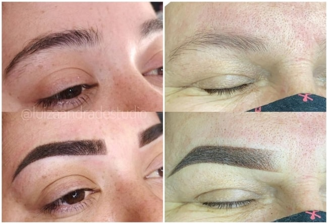 resultados antes e depois de micropigmentacao shadow