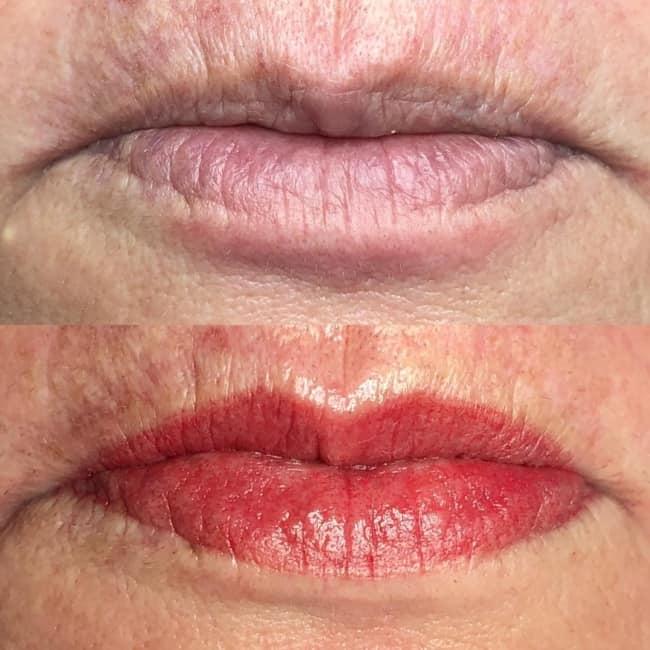 antes e depois de micropigmentacao labial em pele madura