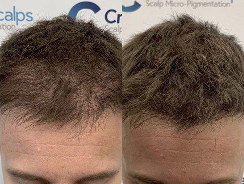 antes e depois de preenchimento com micropigmentacao capilar masculina