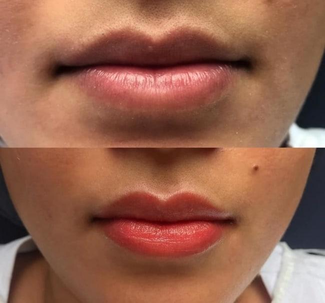 antes e depois de micropigmentacao labial com cor suave