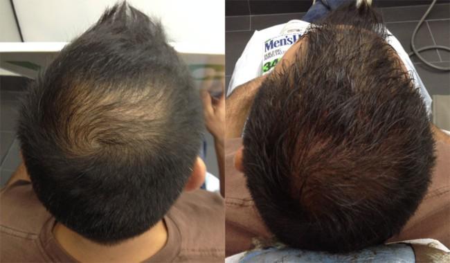 micropigmentacao capilar em cabelo curto