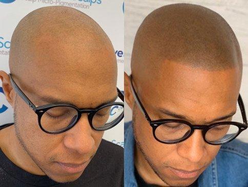 resultados de micropigmentacao em cabelo raspado