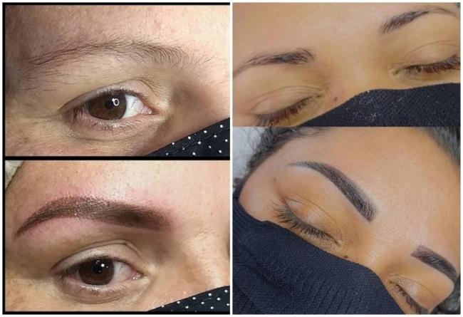 fotos antes e depois de preenchimento de sobrancelhas