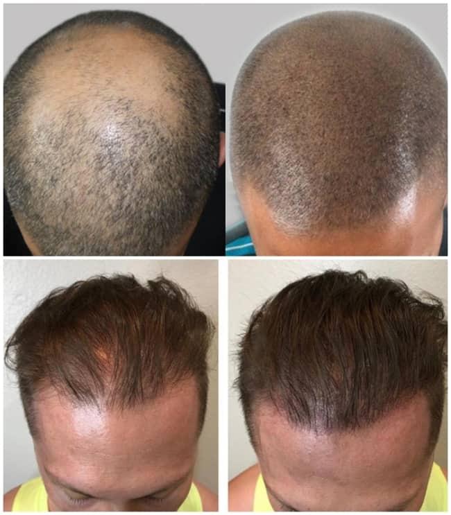 resultados masculinos de micropigmentacao capilar