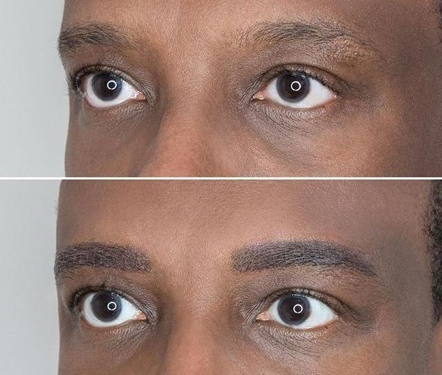 antes e depois de microigmentacao masculina