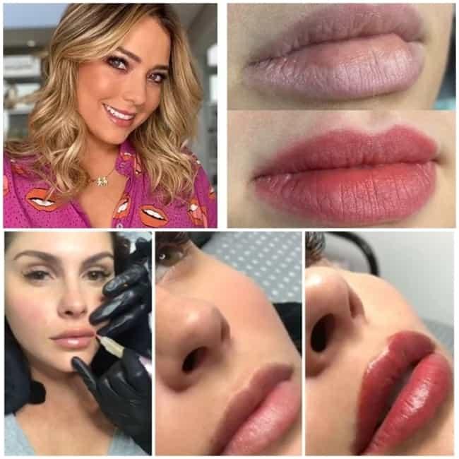 antes e depois de micropigmentacao labial em famosas