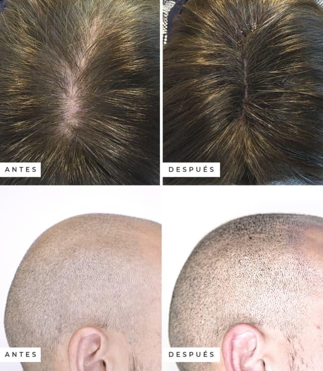 micropigmentacao capilar em diferentes tipos de cabelo