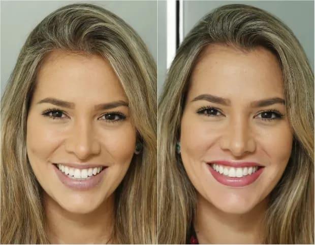 resultado de micropigmentacao labial em famosas