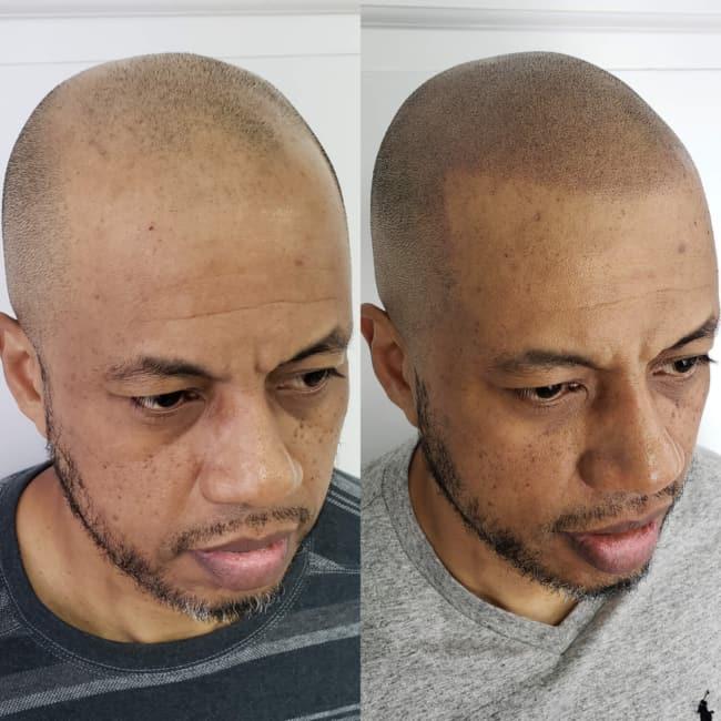 micropigmentacao capilar em cabelo raspado