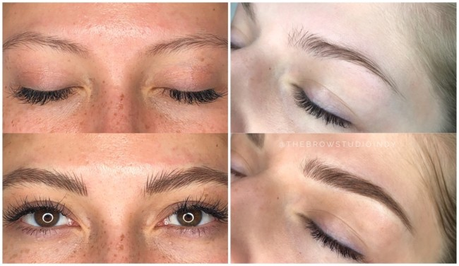 resultados de preenchimento fio a fio nas sobrancelhas