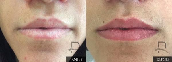antes e depois de micropigmentacao labial