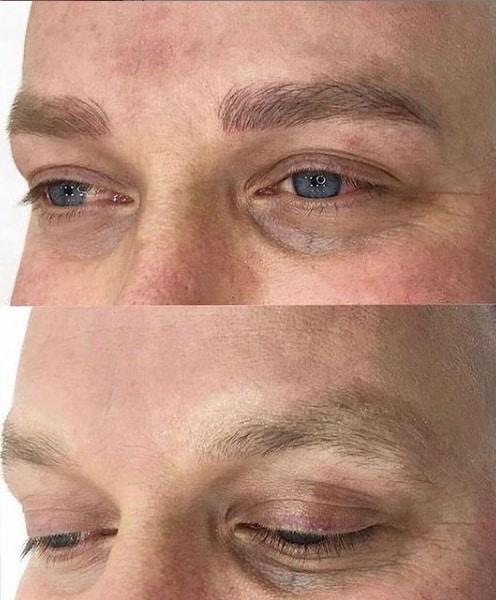 resultado masculino de micropimentacao