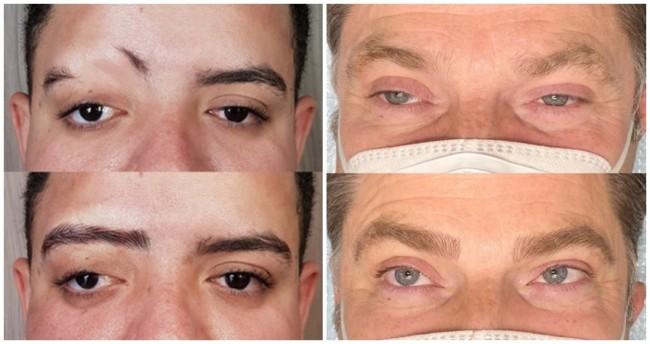 resultados de micropigmentacao na sobrancelha