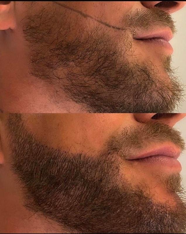 barba com preenchimento de micropigmentacao