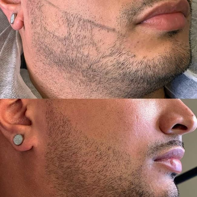 resultado de micropigmentacao para falhas na barba