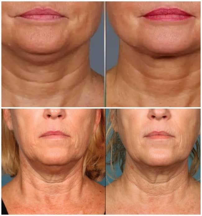 antes e depois de carboxiterapia