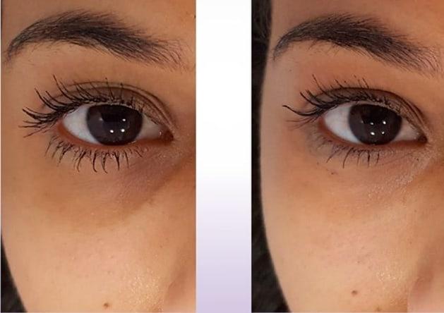 resultado de tratamento nas olheiras
