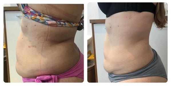 foto de antes e depois de carboxiterapia para gordura localizada
