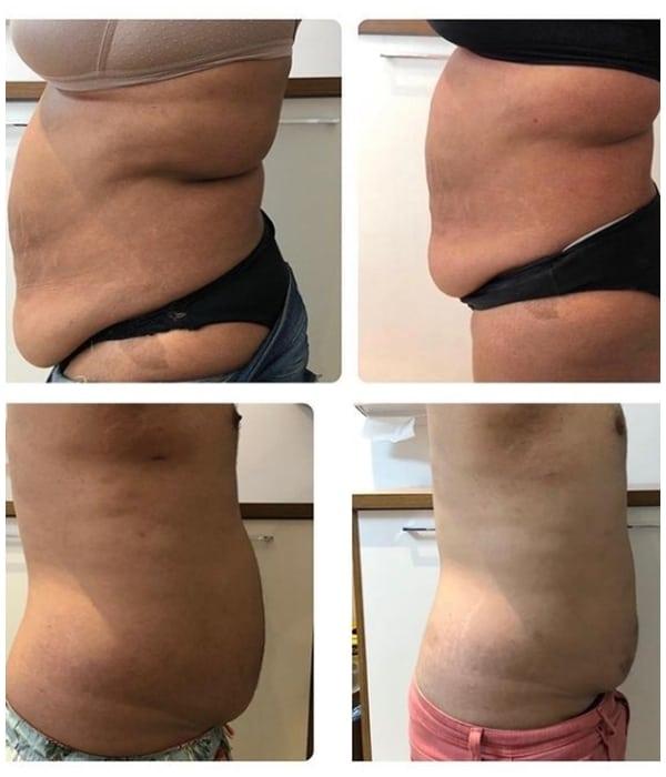 antes e depois de carboxiterapia em gordura localizada