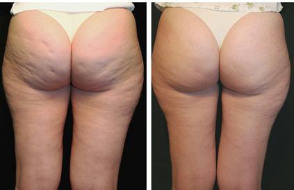 antes e depois de carboxiterapia em celulites