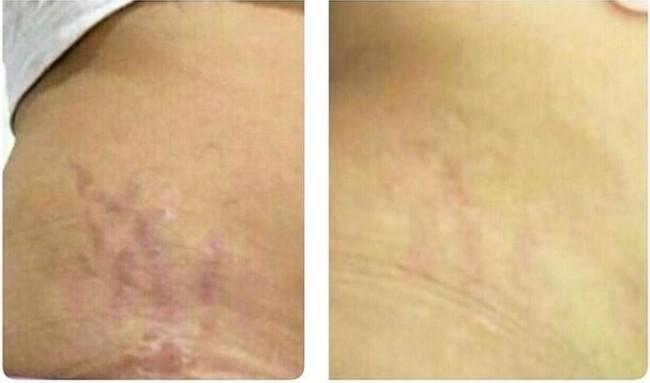 antes e depois de carboxiterapia em estrias