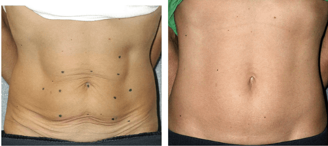 resultado de tratamento para flacidez na barriga