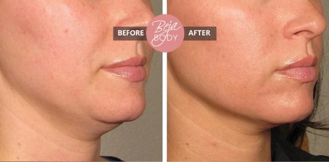 foto de papada antes e depois de carboxiterapia
