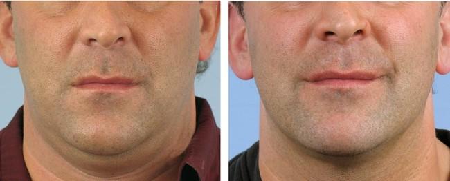 resultado de carboxiterapia na papada masculina