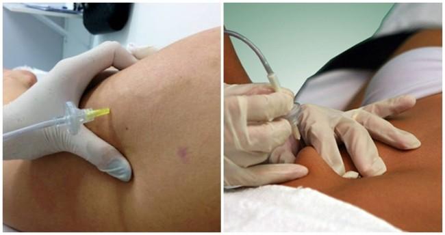 contraindicacoes de tratamento de carboxiterapia