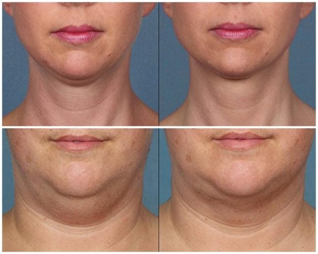 fotos de antes e depois de carboxiterapia na papada