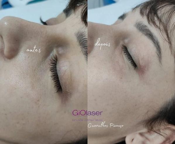 resultado de tratamento de olheira com carboxiterapia