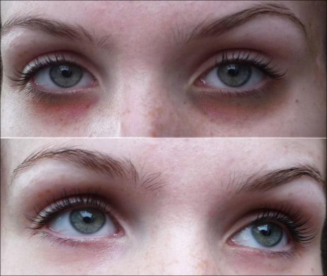 antes e depois de tratamento olheiras