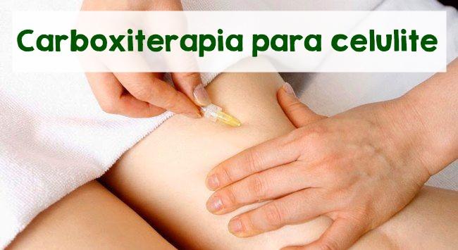 carboxiterapia para celulite