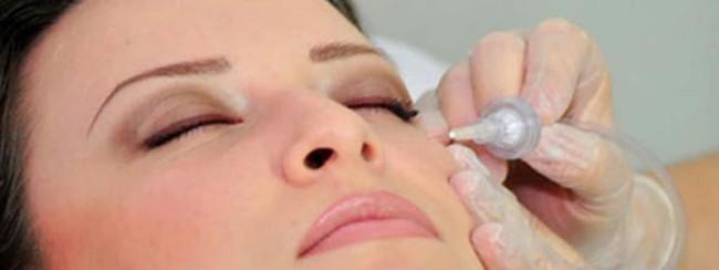 como funciona carboxiterapia facial